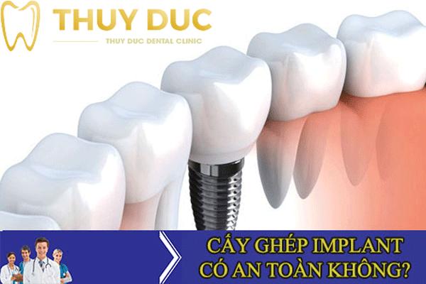 Trồng răng Implant có an toàn tuyệt đối không? 1