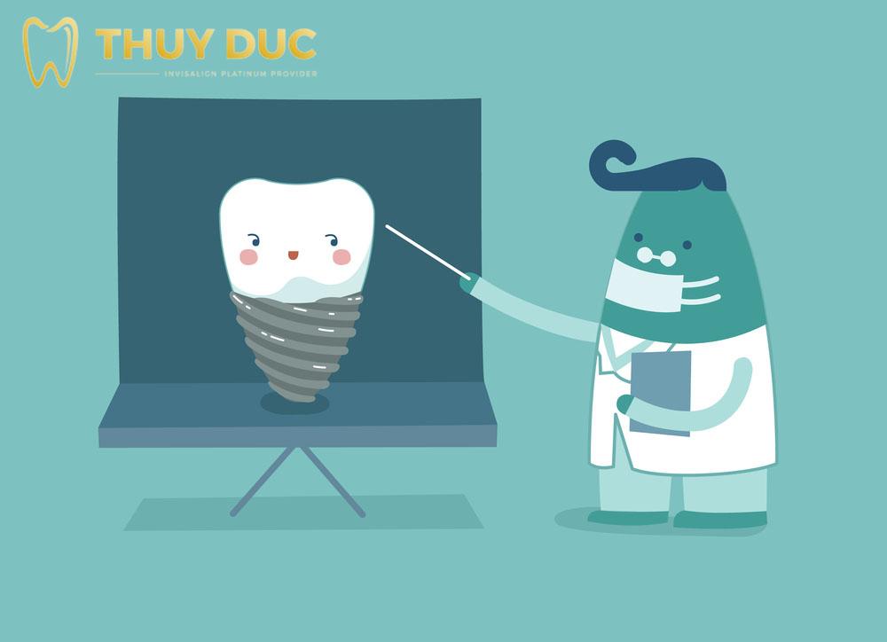 Cấy răng Implant kiêng gì? 2