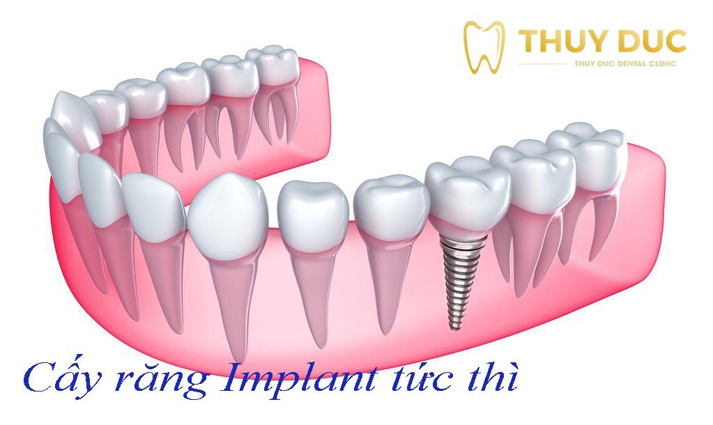 Implant tức thì là gì? 1