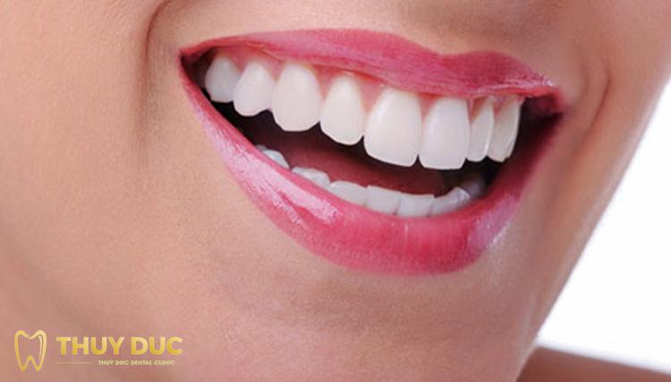 Có nên lựa chọn niềng răng trả góp không? 1