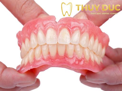 Trồng răng giả tháo lắp là gì? Ưu nhược điểm? 1