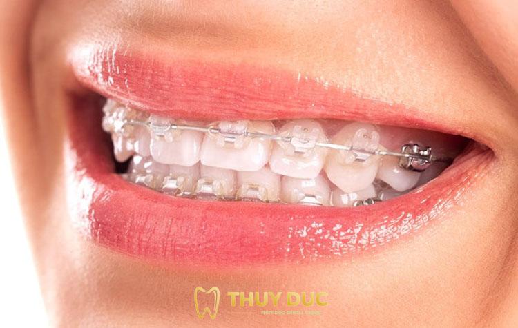 Hạn chế của niềng răng mắc cài pha lê 1