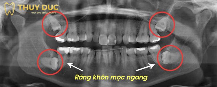 Quy trình nhổ răng khôn mọc ngang gồm những bước nào? 1