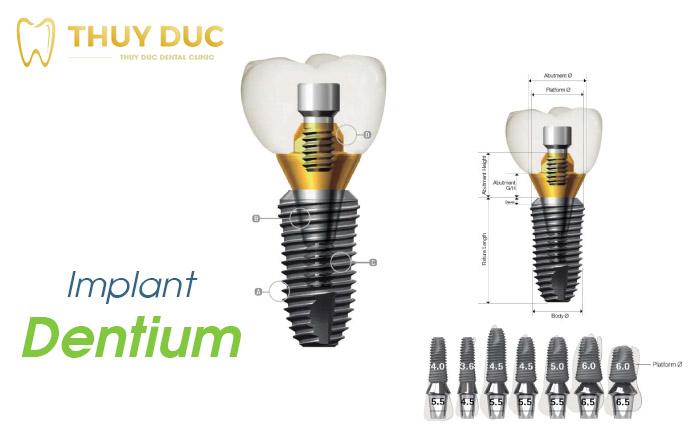 Các loại trụ implant sử dụng tại Nha khoa Thúy Đức 2