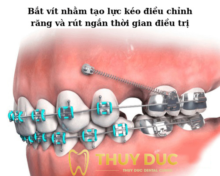 Khi nào cần thực hiện cắm vít niềng răng? 1