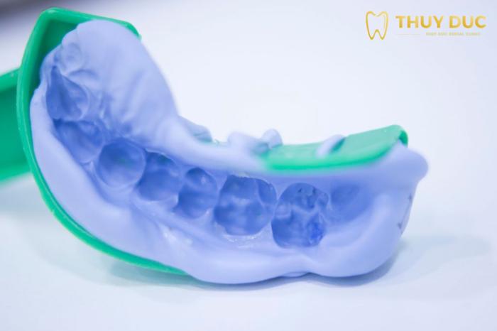 Bước 2: Lấy dấu hàm để làm răng giả 1