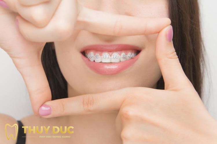 Niềng răng mắc cài kim loại tự đóng/tự buộc 1