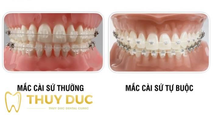 Niềng răng mắc cài sứ/pha lê thường (tiêu chuẩn) 1