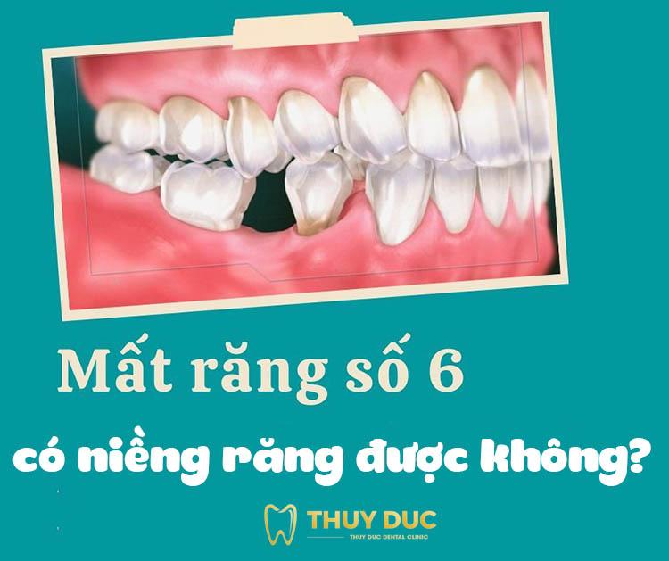Mất răng số 6 có niềng răng được không? 1