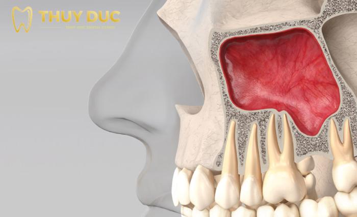 Một số nguy cơ có thể xảy ra trong quá trình nâng xoang ghép xương 1
