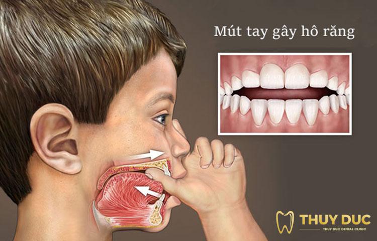 Nguyên nhân nào khiến răng bị hô? 1