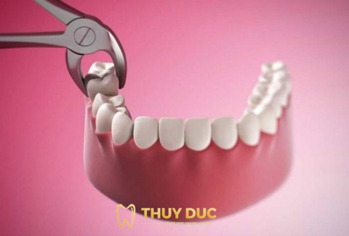Niềng răng nhổ 4 cái có nguy hiểm không? Có bắt buộc phải nhổ không? 1
