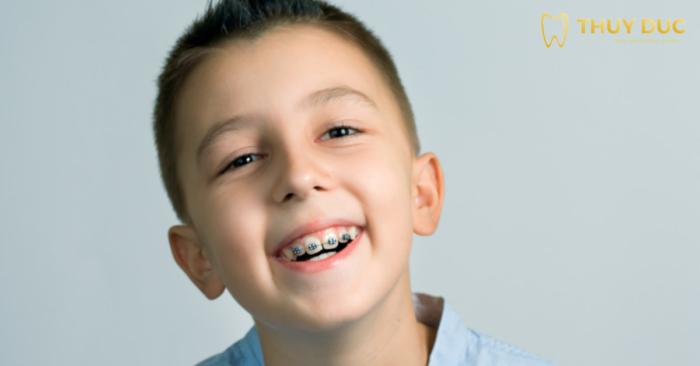 Niềng răng không cần nhổ răng cho trẻ - Công nghệ mới, hiệu quả cao 1