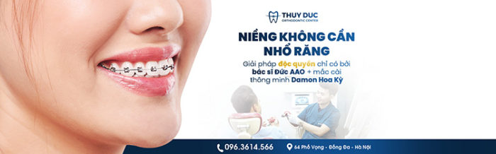 Niềng răng mắc cài kim loại tự động có cần phải nhổ răng không? 1