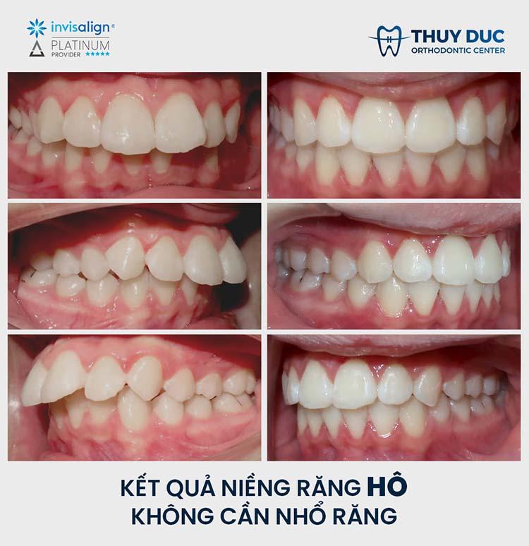 Quy trình niềng răng hô không cần nhổ răng F.A.C.E tại nha khoa Thúy Đức 2