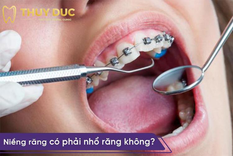 Niềng răng có phải nhổ răng không? 1