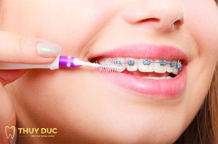 Niềng răng dùng bàn chải gì? - Nha khoa Thúy Đức tư vấn 1
