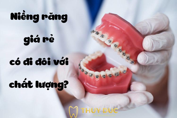 Niềng răng giá rẻ có đi đôi với chất lượng? 1