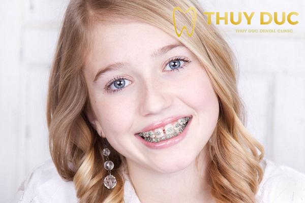 Niềng răng sớm giúp giảm sự khó chịu và đau đớn cho trẻ 1