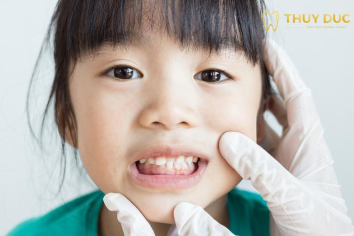 Những trường hợp nên cân nhắc niềng răng cho trẻ 1