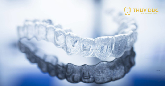 Niềng răng không mắc cài có hiệu quả không? 1