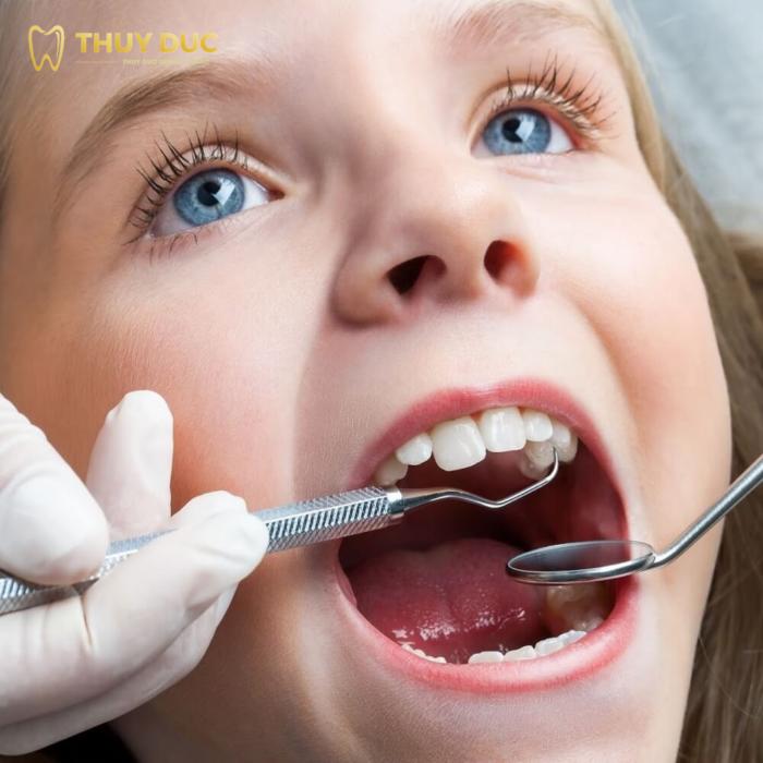 Có nên nhổ răng cho trẻ khi niềng răng không? 1