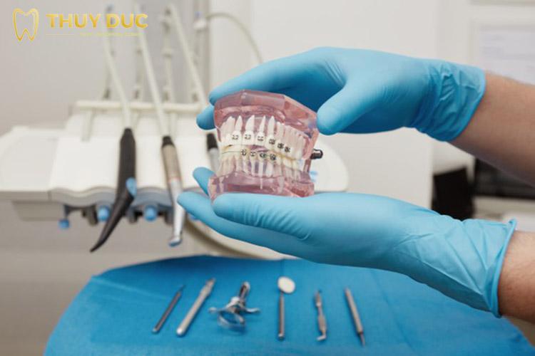 Niềng răng hô có phải nhổ răng không? 1