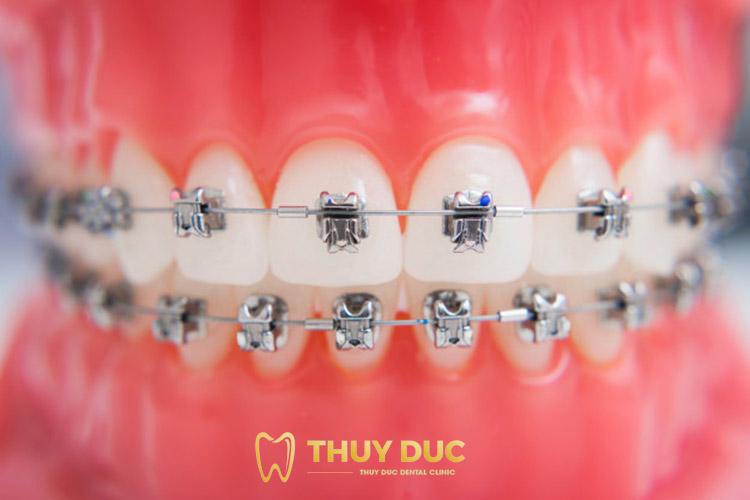 Niềng răng hô mắc cài kim loại truyền thống 1