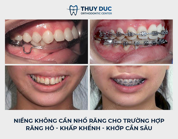 Quy trình niềng răng hô chuẩn nhất tại nha khoa Thúy Đức 1