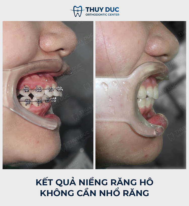 Quy trình niềng răng hô chuẩn nhất tại nha khoa Thúy Đức 2