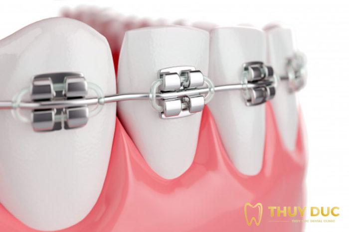 Niềng răng mắc cài kim loại là gì? 1