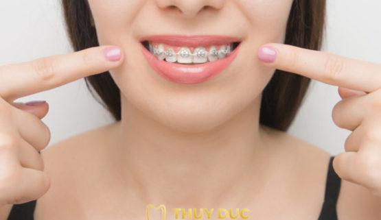 Niềng răng là gì ? Những điều cần biết trước khi niềng răng