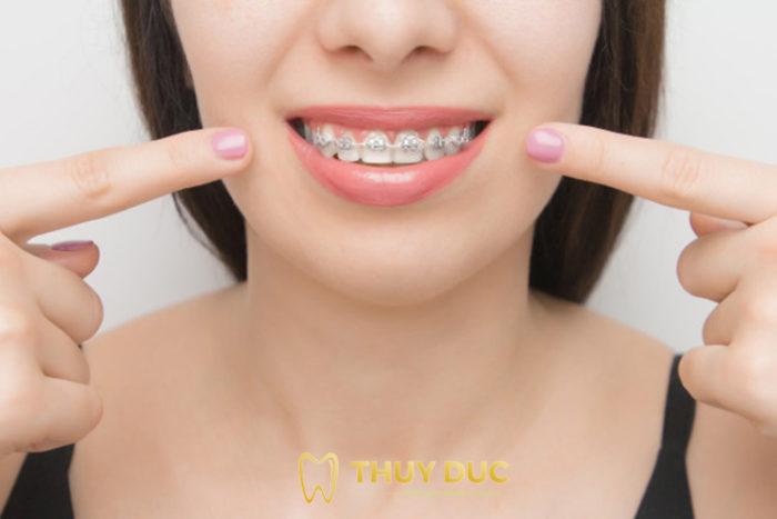 Phương pháp niềng răng cho người bị lệch nhân trung 1