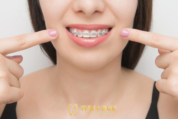 Niềng răng mắc cài kim loại 1