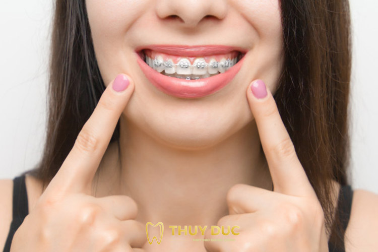 Niềng răng thưa mắc cài kim loại truyền thống 1