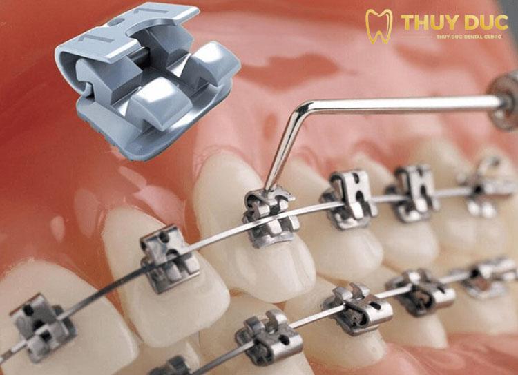 Niềng răng mắc cài kim loạitự đóng/tự khóa 1