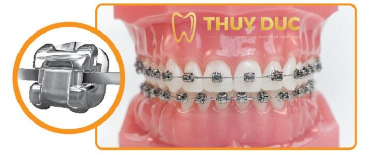 Niềng răng hô hàm trên nên dùng loại nào? 1