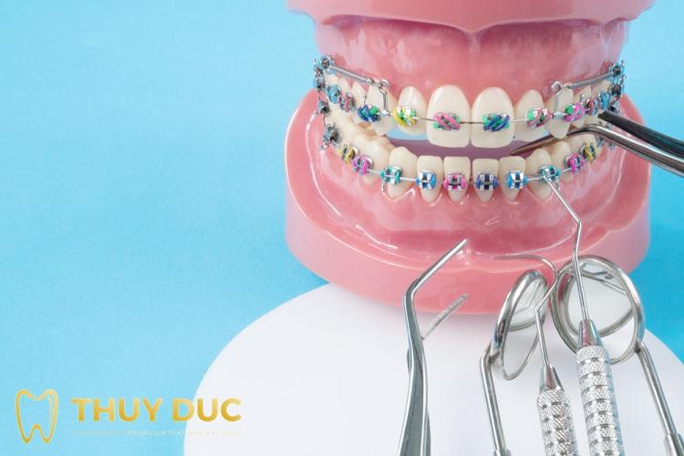 Có những loại niềng răng mắc cài nào? Ưu, nhược điểm của từng loại mắc cài 1