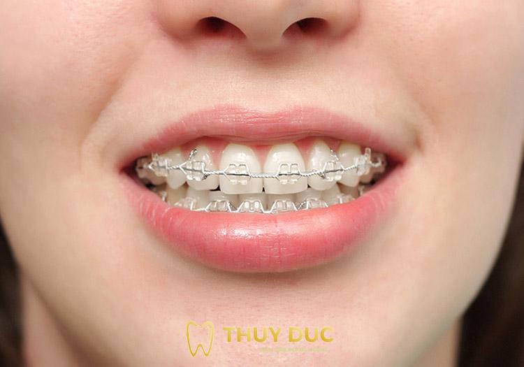 Tìm hiểu niềng răng mắc cài pha lê 1