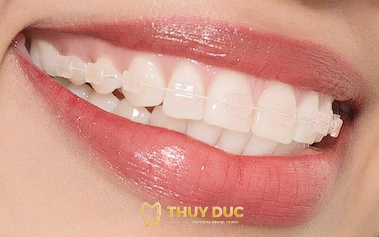 Niềng răng với mắc cài sứ 2