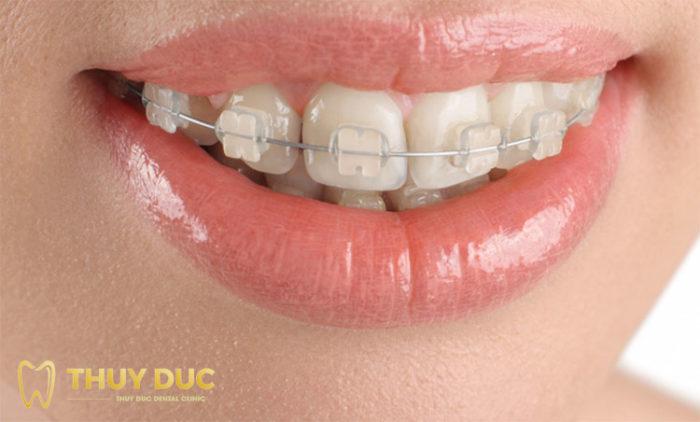 Niềng răng với mắc cài sứ 1
