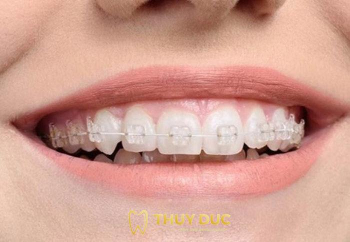 Niềng răng mắc cài sứ/ pha lê 1