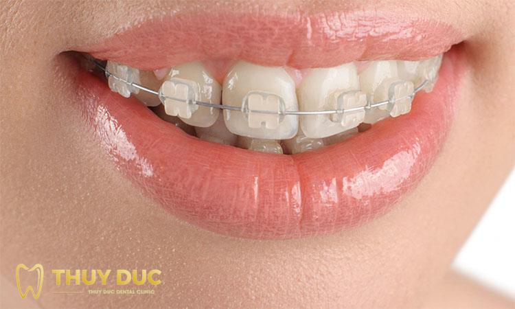 Niềng răng hô mắc cài sứ 1