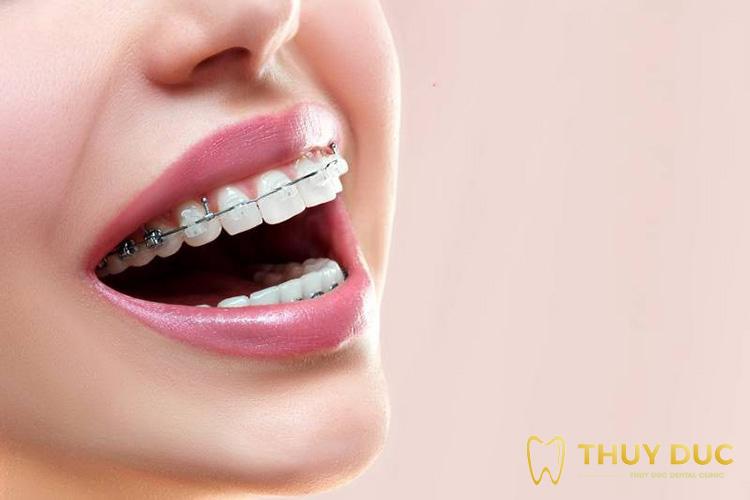 Niềng răng mắc cài là gì? Ưu nhược điểm của từng loại mắc cài 1