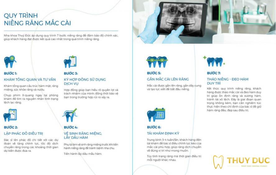 Quy trình niềng răng mắc cài sứ tại nha khoa Thúy Đức 1