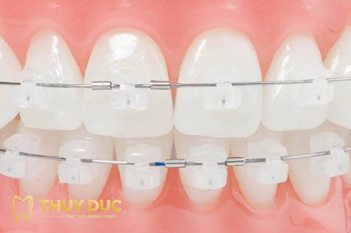 Có nên niềng răng mắc cài sứ tự buộc không? 1