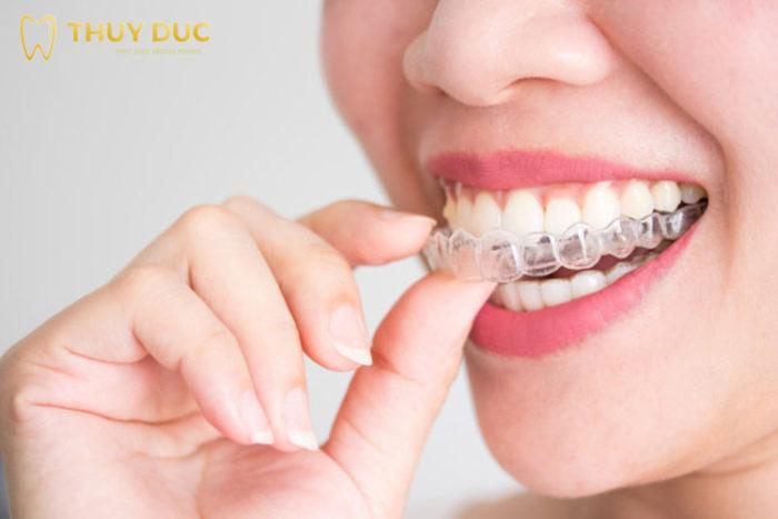 Thế nào là niềng răng trong suốt Invisalign? 1