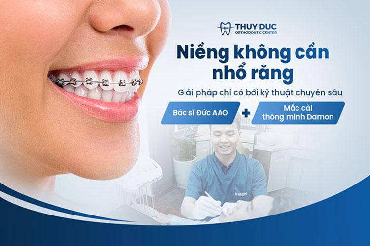Phương pháp niềng răng mới nhất tại nha khoa Thúy Đức 1
