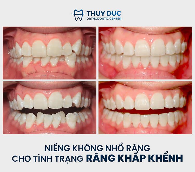 Quy trình niềng răng chất lượng tại nha khoa Thúy Đức 1