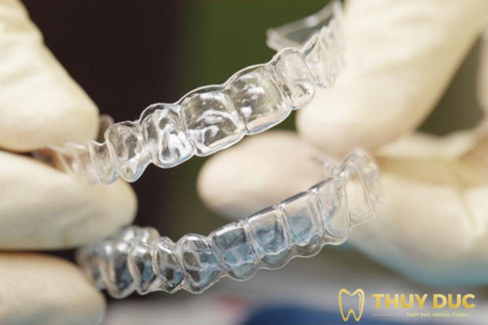 Phương pháp niềng răng trong suốt Invisalign 1